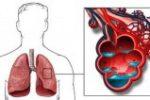 Οξύ Πνευμονικό Οίδημα: Ύπουλος Δολοφόνος των Πυροσβεστών;