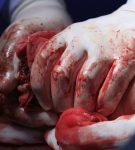 Συμβουλές για φροντίδα των ανοιχτών πληγών, κοψιμάτων και γρατσουνιών